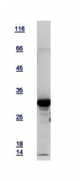 GTX109592-pro - Tropomyosin-3 (TPM3)