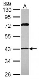 GTX109620 - RRM2B / P53R2