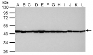 GTX109639 - Actin beta / ACTB