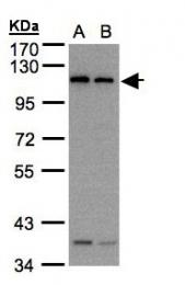 GTX109652 - Dynamin-2