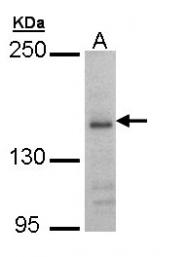GTX109713 - NMDAR2B