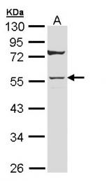 GTX109723 - Cytokeratin 7