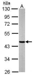 GTX109728 - SUCLA2