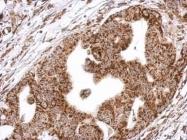 GTX109815 - Biotin-protein ligase / HLCS