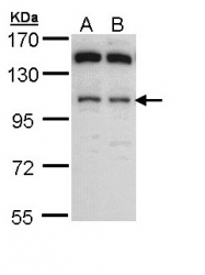 GTX109821 - Alpha-glucosidase