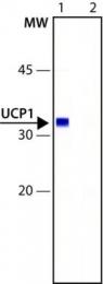 GTX10983 - SLC25A7 /  UCP1