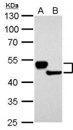 GTX109883 - Cytokeratin 13