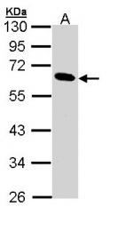 GTX109936 - Pancreatic lipase / PNLIP
