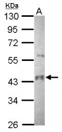 GTX109941 - PNPLA2 / ATGL