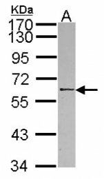GTX109967 - RBMY1A1 / RBMY1C