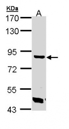 GTX109979 - Trehalase (TREH)