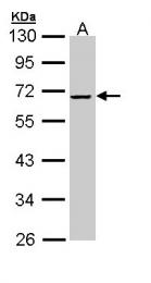 GTX110076 - Alpha-2-antiplasmin / SERPINF2