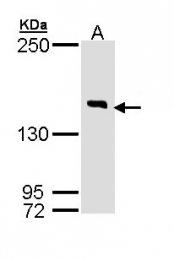 GTX110116 - DIP2B