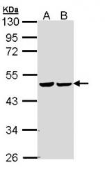 GTX110128 - Fumarase