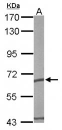 GTX110167 - CCT5 / TCP1 epsilon