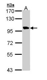 GTX110171 - Meckelin