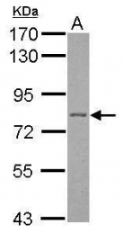 GTX110201 - Plakophilin 1 / PKP1