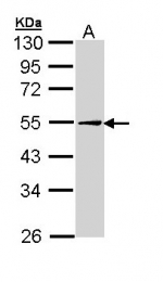 GTX110204 - Adipophilin / ADFP