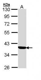 GTX110214 - SERPINA6 / CBG