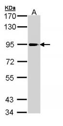 GTX110218 - PLA2G4A