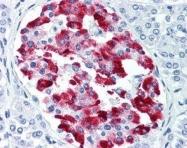 GTX11022 - Amylin / IAPP