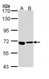 GTX110255 - ATP6V0A4