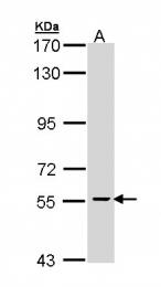 GTX110280 - Parafibromin