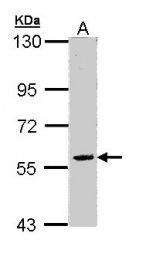 GTX110304 - Hyccin