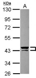 GTX110308 - Cytokeratin 13