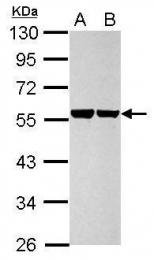 GTX110311 - Cytokeratin 8