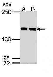 GTX110331 - SMC1A / SMC1