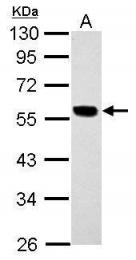 GTX110414 - Cytokeratin 7