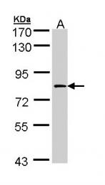 GTX110434 - Coagulation factor XIIIa (F13A1)