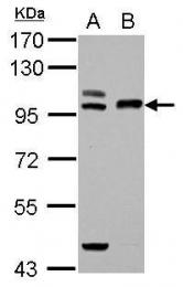 GTX110441 - TFR2