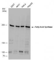 GTX110470 - Fatty acid synthase