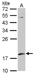 GTX110476 - SUMO1
