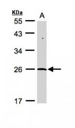 GTX110478 - SENP8