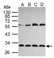 GTX110527 - Interleukin-6 / IL6