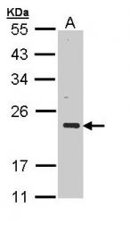 GTX110536 - CSRP3