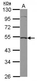 GTX110542 - Caspase-2