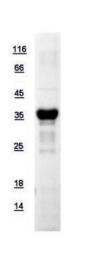 GTX110558-pro - APEX1 / REF-1