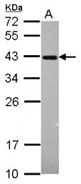 GTX110562 - ERCC1