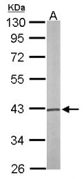 GTX110576 - PSAT1