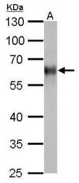 GTX110589 - Thioredoxin reductase 1 / TXNRD1