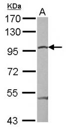 GTX110594 - Catenin beta-1