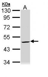 GTX110600 - Cytokeratin 20