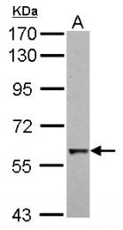GTX110605 - CDC6