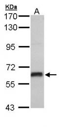 GTX110607 - Estrogen receptor beta