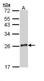 GTX110633 - Growth hormone 2