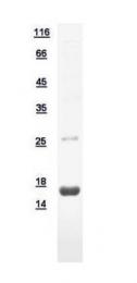 GTX110676-pro - Matrix Gla Protein
